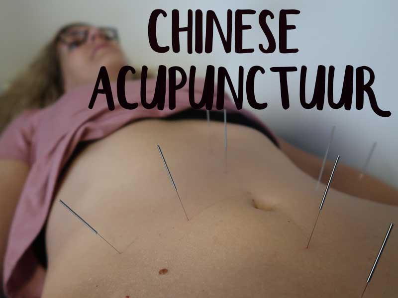 chinese acupunctuur